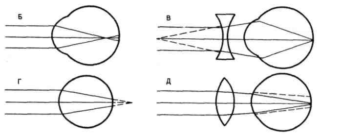 7995f6a00 إذا كانت الأشعة تتقابل أمام شبكية العين ، فسوف تتطور قصر النظرأو قصر النظر.  مع هذا الانتهاك للانكسار ، لا يرى الشخص أشياء في وضع جيد ، والأشياء متباعدة  عن ...